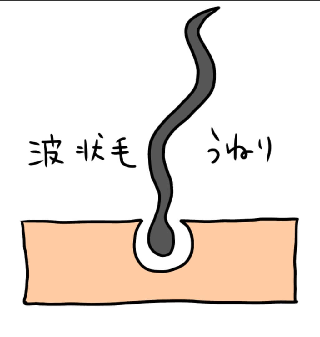 うねり系のクセ波状毛